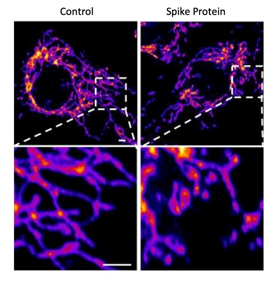Proteina Spike.Danno cellule vascolari