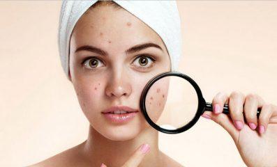 Seborax recensioni, prezzo, funziona, siero anti acne, in farmacia, opinioni