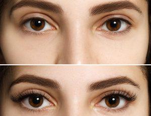 EyeLash Serum forum