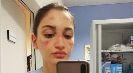 Coronavirus, l'appello di Alessia l'infermiera con i segni della maschera: «Sono stanca ma faccio la mia parte, voi fate la vostra»