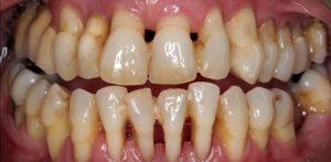 Parodontite, Piorrea