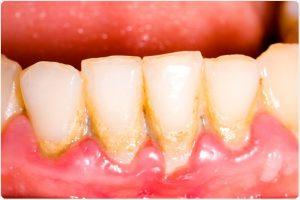 Pulizia denti - ablazione tartaro