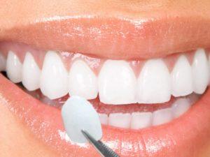 faccette dentali Lumineers