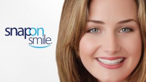Dentista Roma Snap on Smile