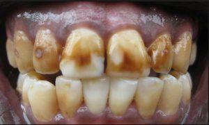 macchie scure denti