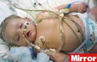 bambino-meningite_12191701