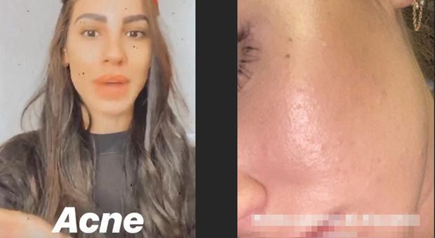 5002647_1620_giulia_de_lellis_acne