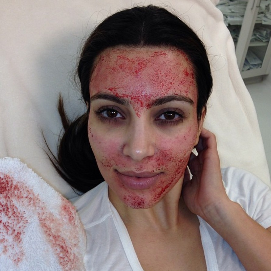 vampire_facial_kim_kardashian_malattia_infettiva_12141627
