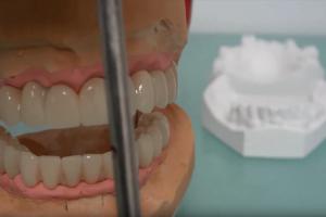 implantologia arezzo