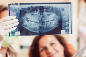 implantologia brescia prezzi