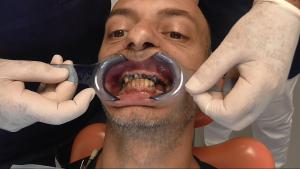 implantologia padova