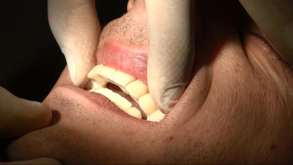 circolari dentali fissi senza gengiva