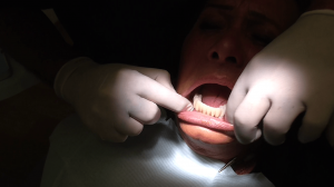 implantologia impianti denti