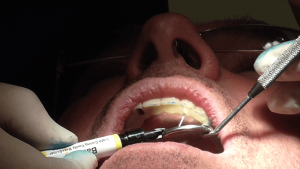 implantologia dnetale impianti denti