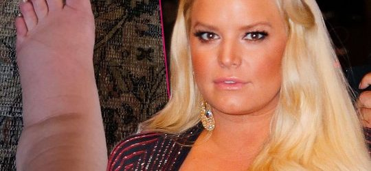 Pregnant-Jessica-Simpson-Swollen-Foot-Photo-pp