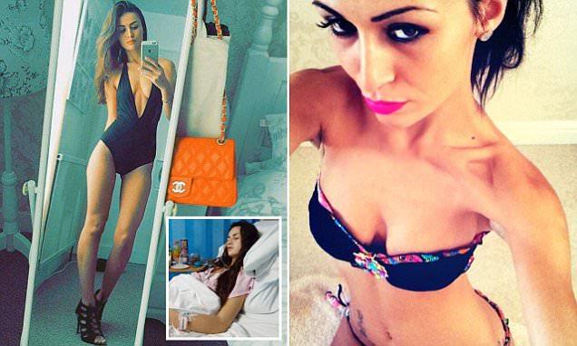 Terapie sbagliate per 10 anni: la giovane sexy modella a 26 anni è già in menopausa