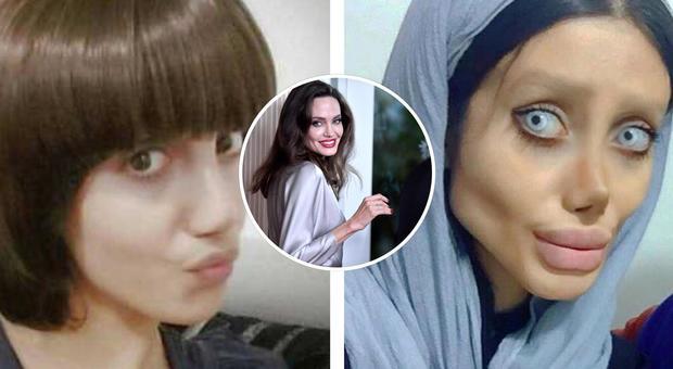 Cinquanta interventi in tre anni per somigliare a Angelina Jolie, ecco gli effetti choc