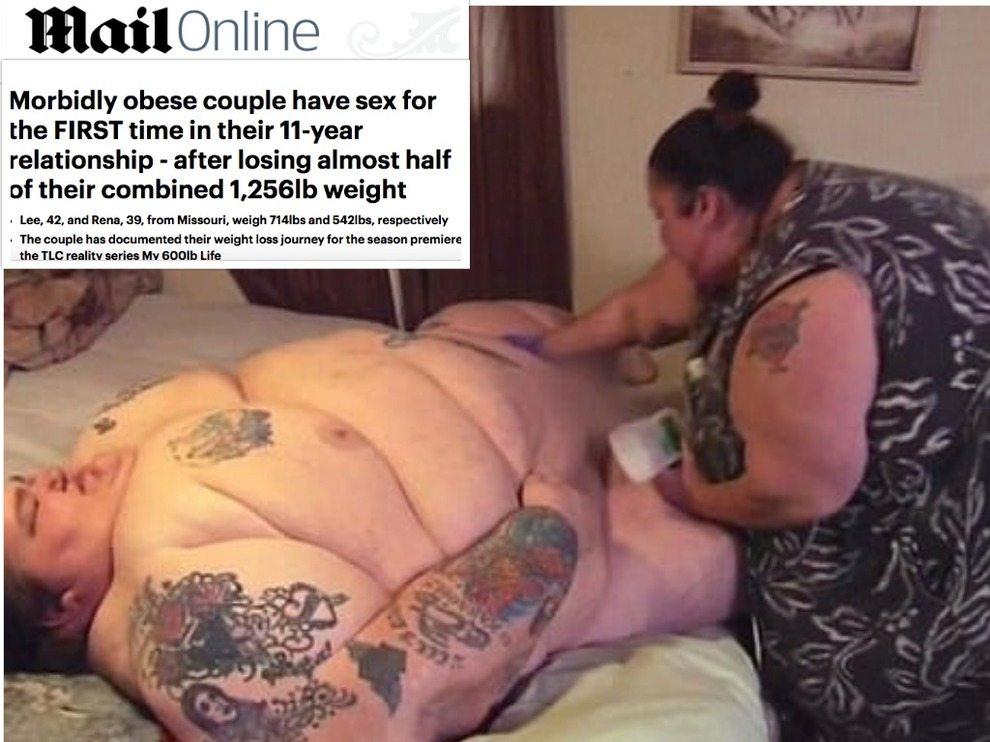 Coppia di obesi pesa 570 chili in due, perde metà del peso e riesce a fare sesso: