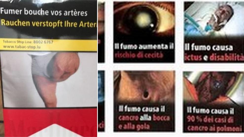 Gamba amputata sui pacchetti di sigarette, 60enne denuncia: «Quello sono io, ma non l'ho persa per il fumo»