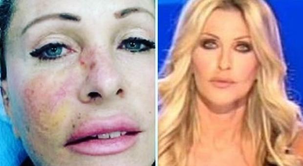 Tumore, il racconto di Paola Ferrari: «Pensavo di avere un brufolino sul viso, prevenzione sempre»