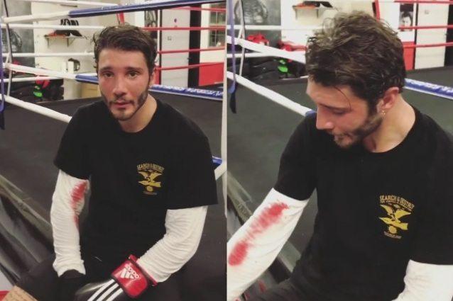 Naso gonfio e sanguinante per Stefano De Martino: