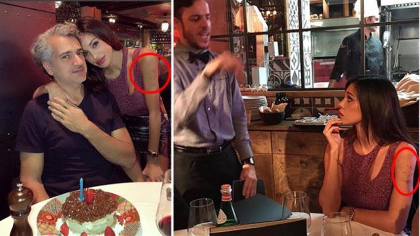 """""""Cosa hai fatto sul braccio sinistro? """" Belen Rodriguez e le """"strane macchie"""" notate dai fan"""