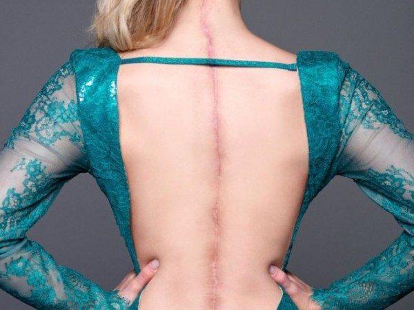 Miss 22enne sfila e vince mostrando la sua cicatrice di 63 cm sulla schiena
