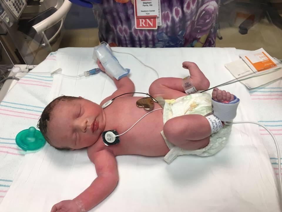 La bambina nata due volte: operata al tumore e ricucita nell'utero