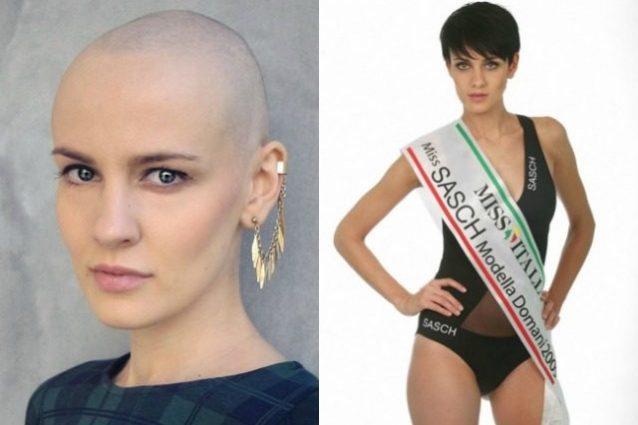 Veronica Sogni, la finalista di Miss Italia stroncata dal tumore al se. no