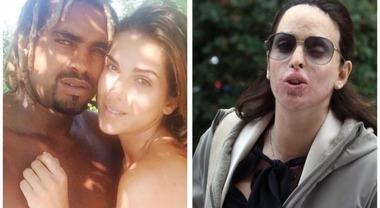 Gessica Notaro, su Fb insulti choc: «Donna ciclope, meritavi l'acido». Gli haters identificati e denunciati
