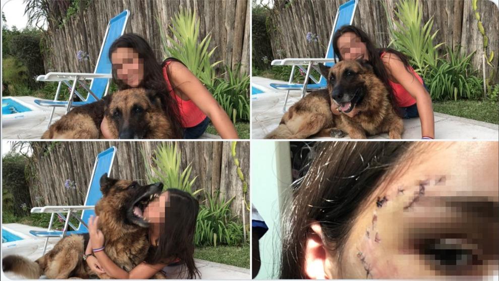 Posa per una foto con il suo cane, il pastore tedesco le azzanna il volto: 40 punti di sutura