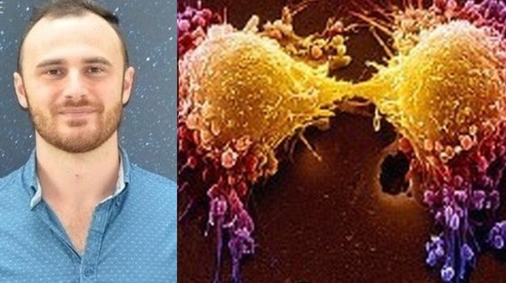 Tumore eliminato con il fascio di elettroni: la scoperta che fa sperare di un fisico pugliese