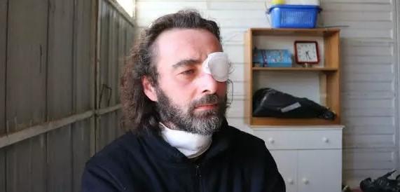 Don Riccardo, il prete innamorato con una benda sull'occhio: «Ho pianto troppo. Ora provo un senso di libertà»