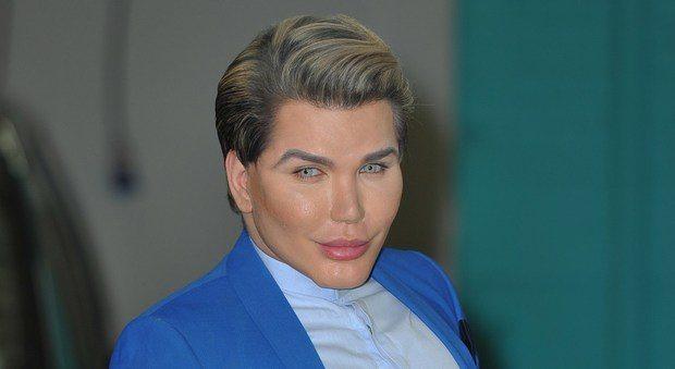 """«Cerco una Barbie... o un uomo». Rodrigo Alves, 58 operazioni per diventare il """"Ken umano"""""""