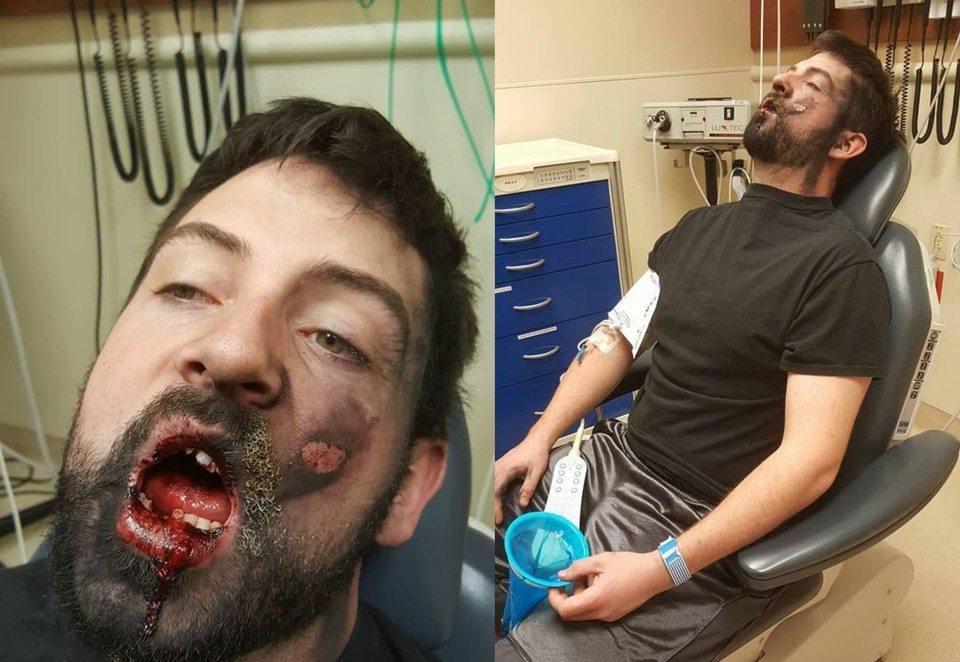"""La sigaretta elettronica gli esplode in faccia: """"Ecco i rischi"""". E condivide le foto su Facebook"""